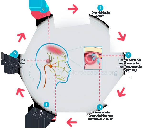 fibromialgia secundaria a migrañas